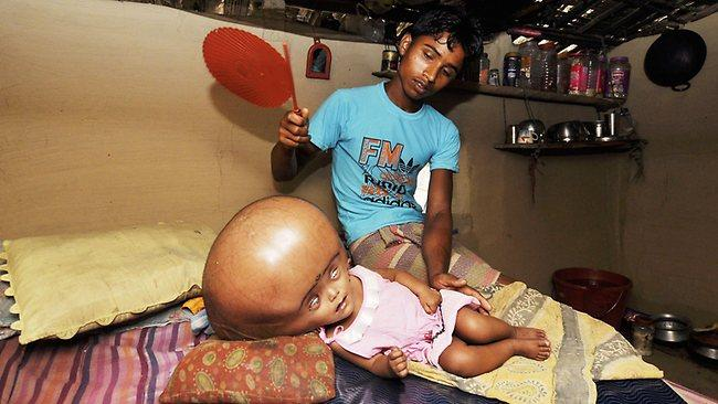 960529-india-health-social-poverty-hydrocephalus